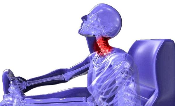 Maneras en las que puede producirse un esguince o latigazo cervical durante un accidente de trafico